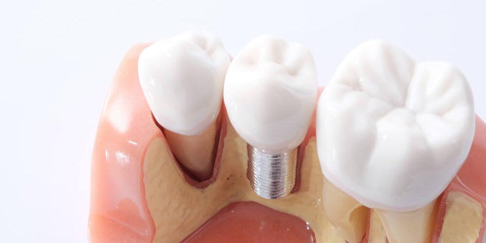 Implantologia. Daje dentystom nowe możliwości